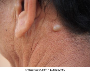 Sebaceous cyst on the neck man form out of sebaceous gland the oil called sebum and skin treatment of laser or punch biopsy excision.