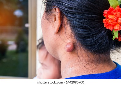Sebaceous cyst on the neck woman form out of sebaceous gland the oil called sebum and skin treatment of laser or punch biopsy excision.Medical concepts.