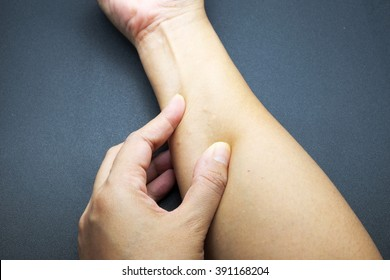 Sebaceous cysts in female arm on black background.