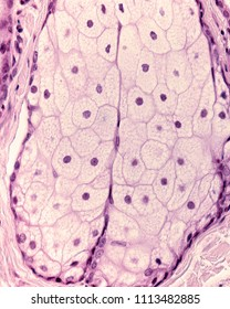 Sebaceous glands are holocrine gland whose cells accumulate sebum in clear oil or lipid droplets. Finally, the cells die, which is indicated by their pyknotic nuclei, visible on top half of the image.