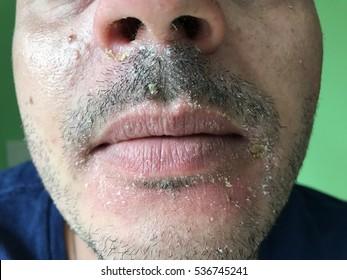 Seborrheic Dermatitis um die Mundhöhle.