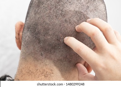Seborrheic Dermatitis Images, Stock Photos & Vectors