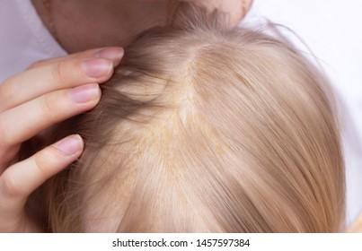 Seborrheic Dermatitis Images, Stock Photos & Vectors   Shutterstock