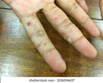 Secondary bacterial infection in scabies lesions from mite (Sarcoptes scabiei) Chronic Scabiasis with abscess wounds. Dryness ,Itchy and peeling on hand skins. Complication Dermatology Disease in SLE