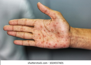 "Secondary stage syphilis sores (lesions) on the palms of the hand. Referred to as ""palmar lesions"""