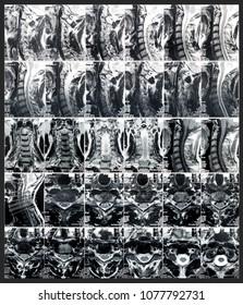 Sectional tomographic image of intervertebral disks. Magnetic resonance tomography (MRT) of neck or cervical spine