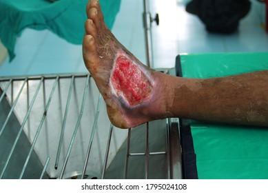 Selective focus Diabetic  foot ulcer.