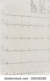 Selective focus of an electrocardiogram (ECG, EKG) report in paper form. Medical and healthcare background