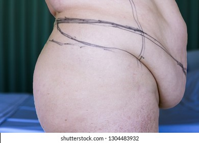 Selective focus of mature women and markings for beltectomy, panniculectomy or apron removal and liposuction on inner thighs. A tummy tuck extending to the spine. Mummy tummy, sagging loose skin.