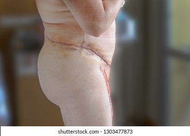 Selective focus of mature women three days post abdominoplasty, beltectomy or apron removal. A tummy tuck extending round to the spine. Over 300 stitches, wound drains in situ, looking great.