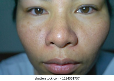 selective focus of middle ages asian woman with natural face skin problem acne Freckles Blemished Wrinkles wide pores and oily skin unhealthy people