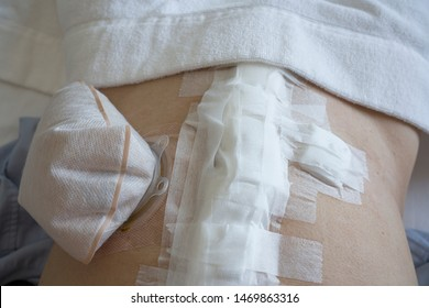 Selective focus of patient recuperate after colon cancer surgery with colostomy pouch in skin.