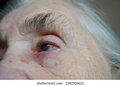 Senile cataract during eye examination. A very old woman with a cataract - cataracts, glaucoma