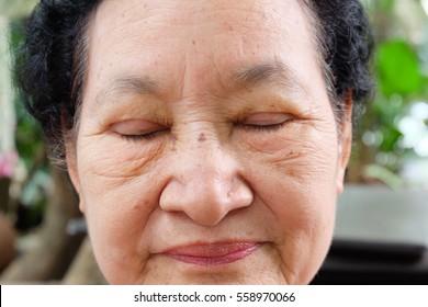 senior after eyelid surgery