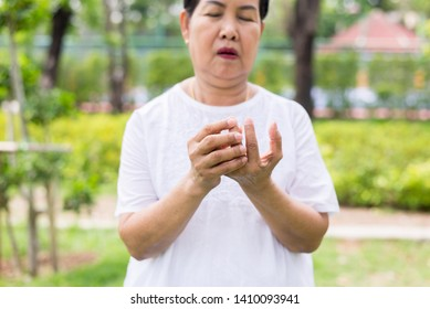 Senior asian woman with beriberi on hand or finger,Disease causing inflammation of the nerves