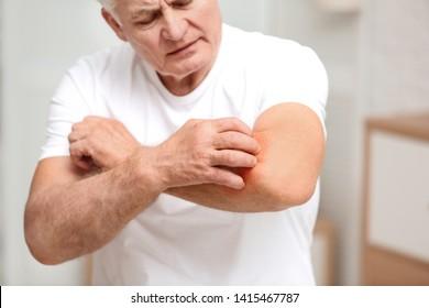 Senior man scratching forearm indoors, closeup. Allergy symptom