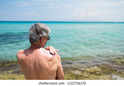 Senior man using sun protection cream on summer vacation