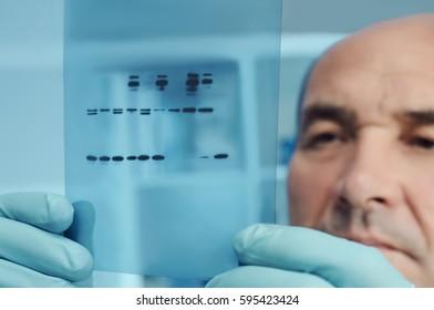 Senior scientist or tech checks results of protein blot analysis on X-ray film