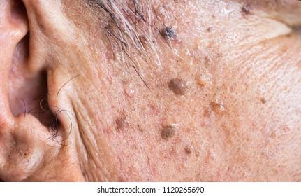 Senior skin problem.old man skin tags.Pedunculated skin tag or acrochondon or soft fibroma.Papilloma bump on male body.Fibroepithelial polyp on stalk.Benign epidermis lesion close up.