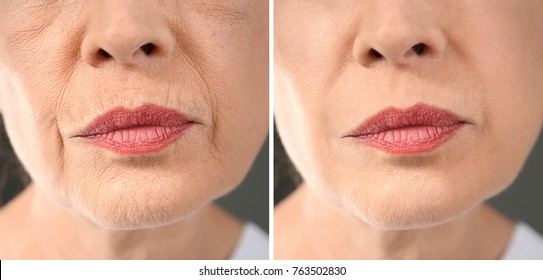 Senior woman before and after biorevitalization procedure, closeup