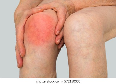 Senior woman holding the knee with pain.