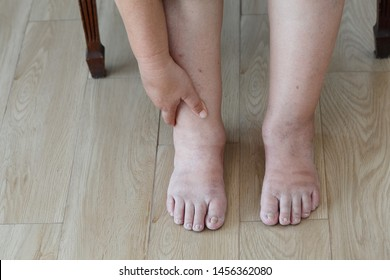 Senior woman swollen feet and leg