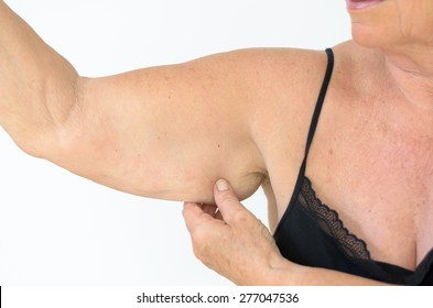 Senior woman wearing black laced bra while showing flabby arm, effect of aging caused by loss of elasticity and muscle, close-up