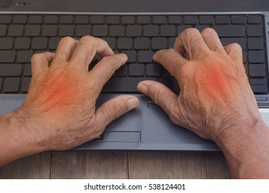 Senior women put a finger on a computer keyboard, she painful finger due to prolonged use of keyboard