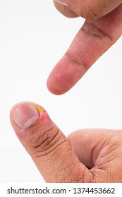 Series of close-up painful finger nail skin infection with pus and treatment