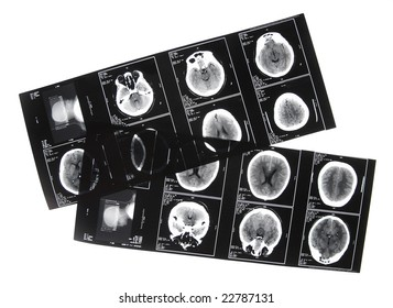 series of X-ray pictures showing male head