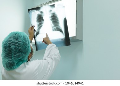 Seriously woman doctor holding and looking patient chest x-ray film before surgery treatment.Image MRI and CT scan at radiology department in hospital.