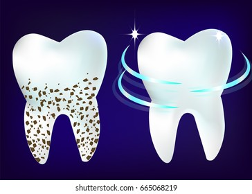 set of 3d realistic clean and dirty tooth on blue background, clearing tooth process. Teeth Whitening.
