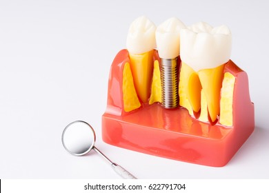 Set of Dentist's equipment tools, denture showing implant