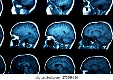 set of MRI scans on black