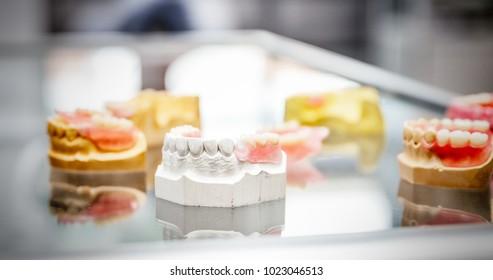 Set of various denture samples, close up view