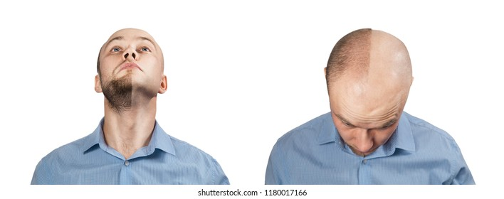 Set of a young bald guy before and after shave and haircut, isolated on white background.