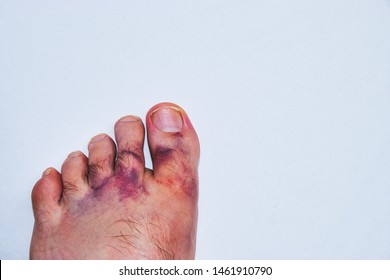 Severe contusion of a caucasian male foot from a work accident