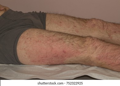 Severe eczema skin disease, atopic dermatitis, in a twenty-four year old caucasian male with multiple allergies