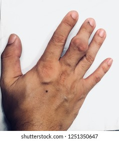 Severe Gout with Fingers Clearly visible