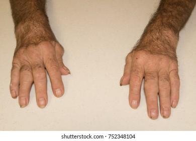Severe Rheumatoid arthritis in a seventy year old caucasian male