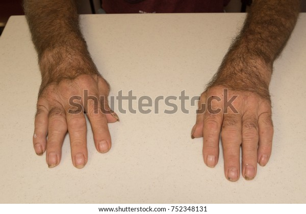 Severe Rheumatoid Arthritis Seventy Year Old Stock Photo Edit Now 752348131