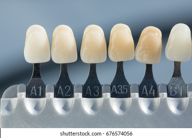 shade guide to check veneer of tooth crown in a dental laboratory