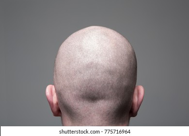 Shaved head, Back view of head