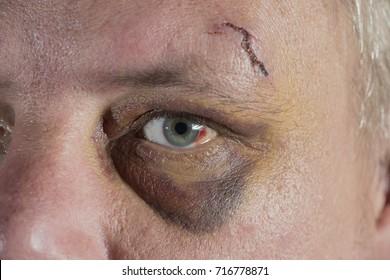 shiner black eye