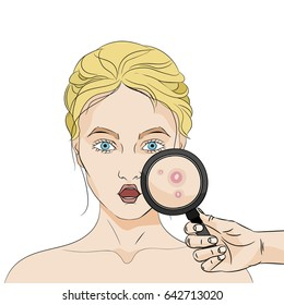 Shocked woman with acne and a hand holding a magnifier on white background