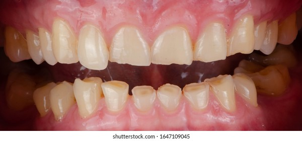 The short and worn down teeth because of always hard biting, the result is improper plane of chewing and uneven size of teeth.