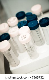 A shot of DNA samples in a research laboratory