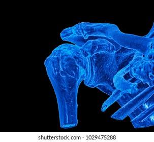 shoulder joint, CT image