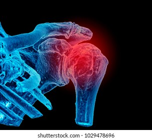 Shoulder joint, CT image, 3D , in blue, symbol of pain colored in red