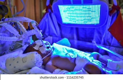 Sick baby with neonatal jaundice and high bilirubin hyperbilirubinemia under blue UV light for phototheraphy. (Phototherapy is the most common form of treatment for jaundice)
